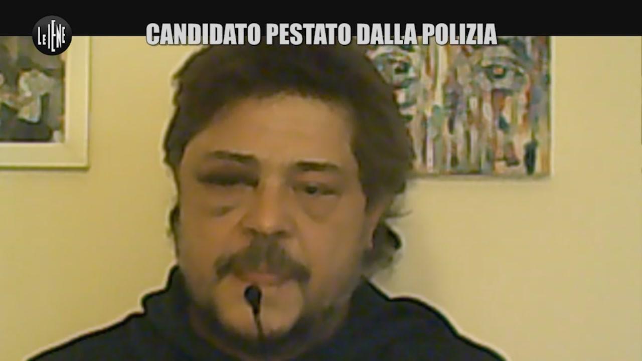"""Il candidato Toni della Pia: """"Pestato dalla polizia"""""""