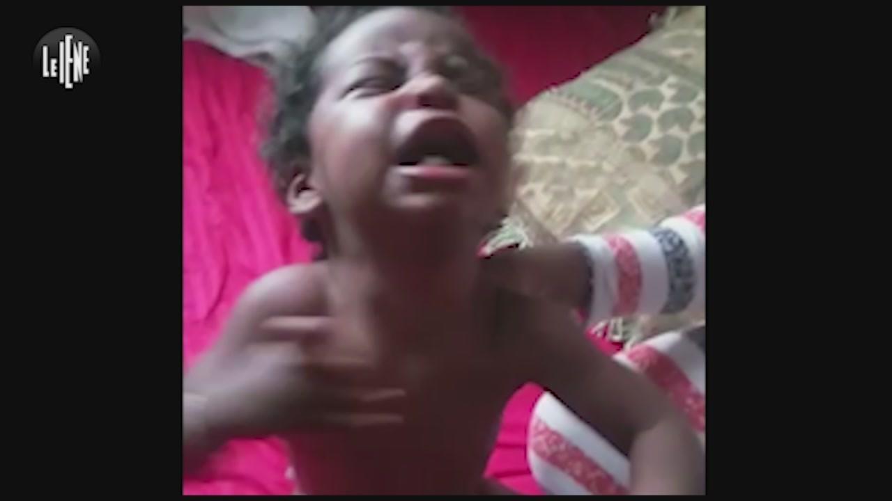 malattie cura etiopia bambina malata