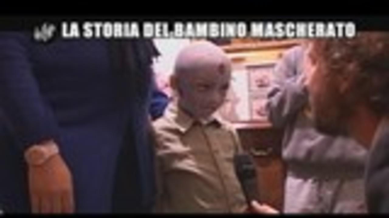 ROMA: La storia del bambino mascherato