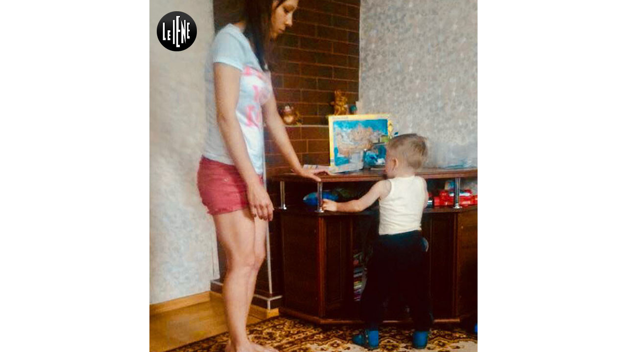 Bambini di Chernobyl, il piccolo Vladik in piedi: le foto