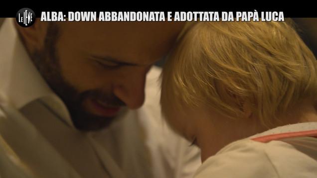 Alba, la bambina down abbandonata e adottata da papà Luca