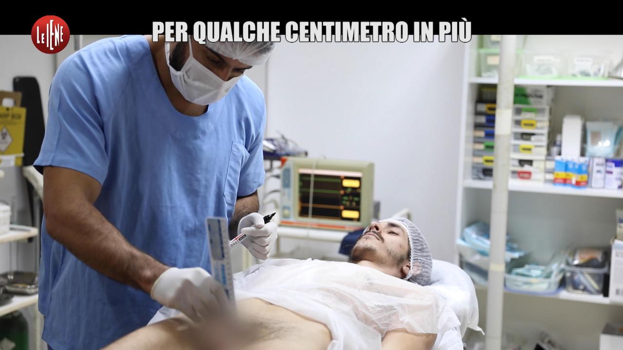 allungamento pene chirurgia plastica centimetri