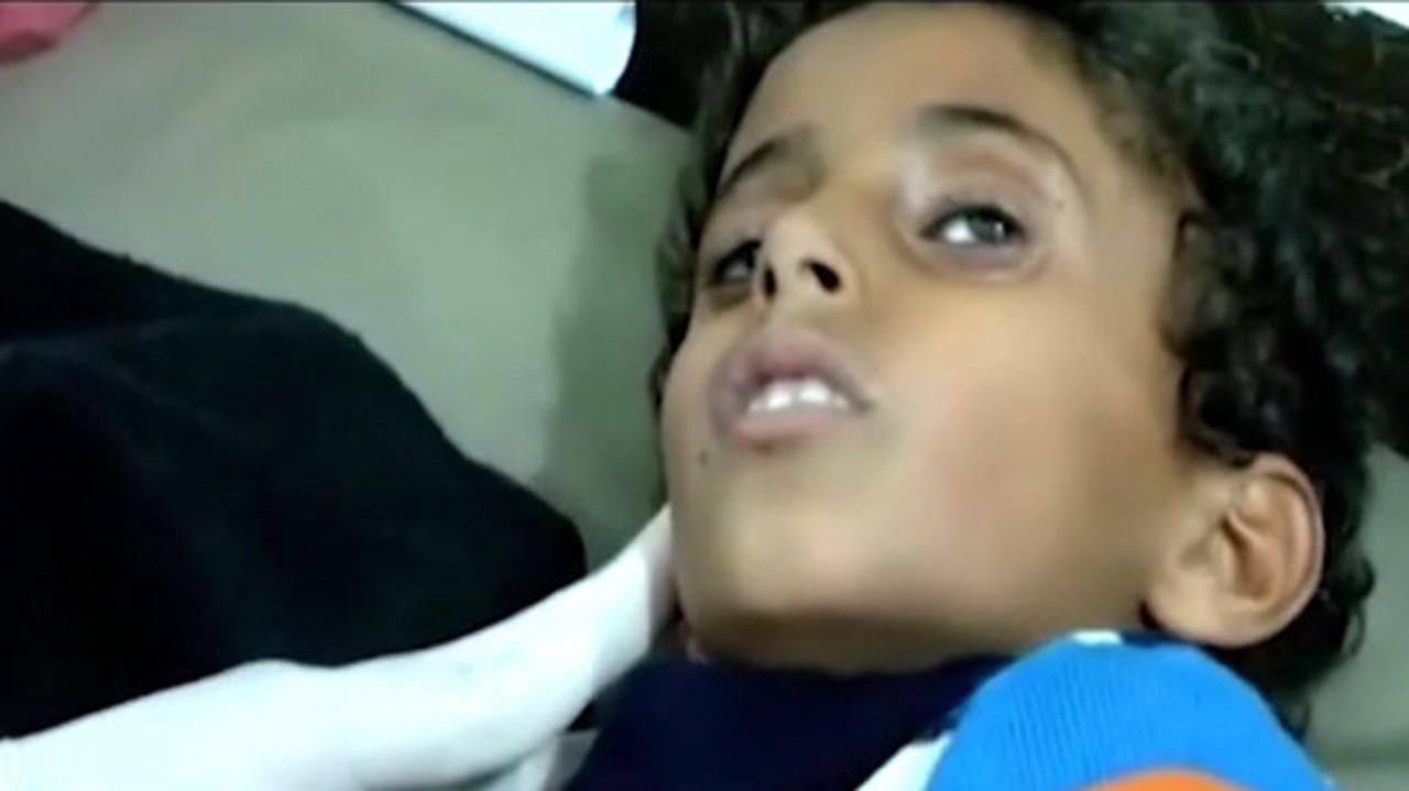 L'Arabia Saudita bombarda l'ospedale di Medici Senza Frontiere e incolpa l'ong | VIDEO