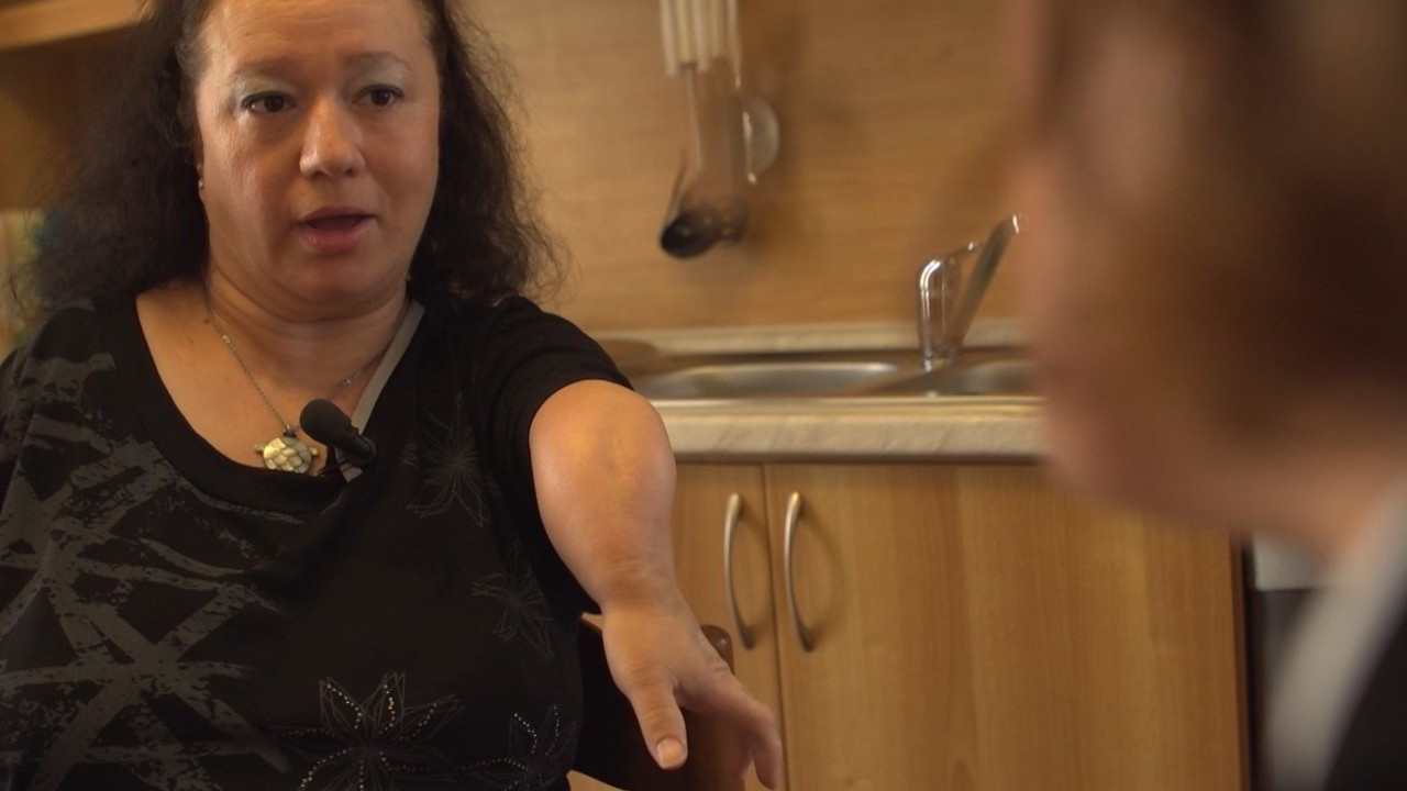 Focomelici senza risarcimenti: vittime due volte del Talidomide