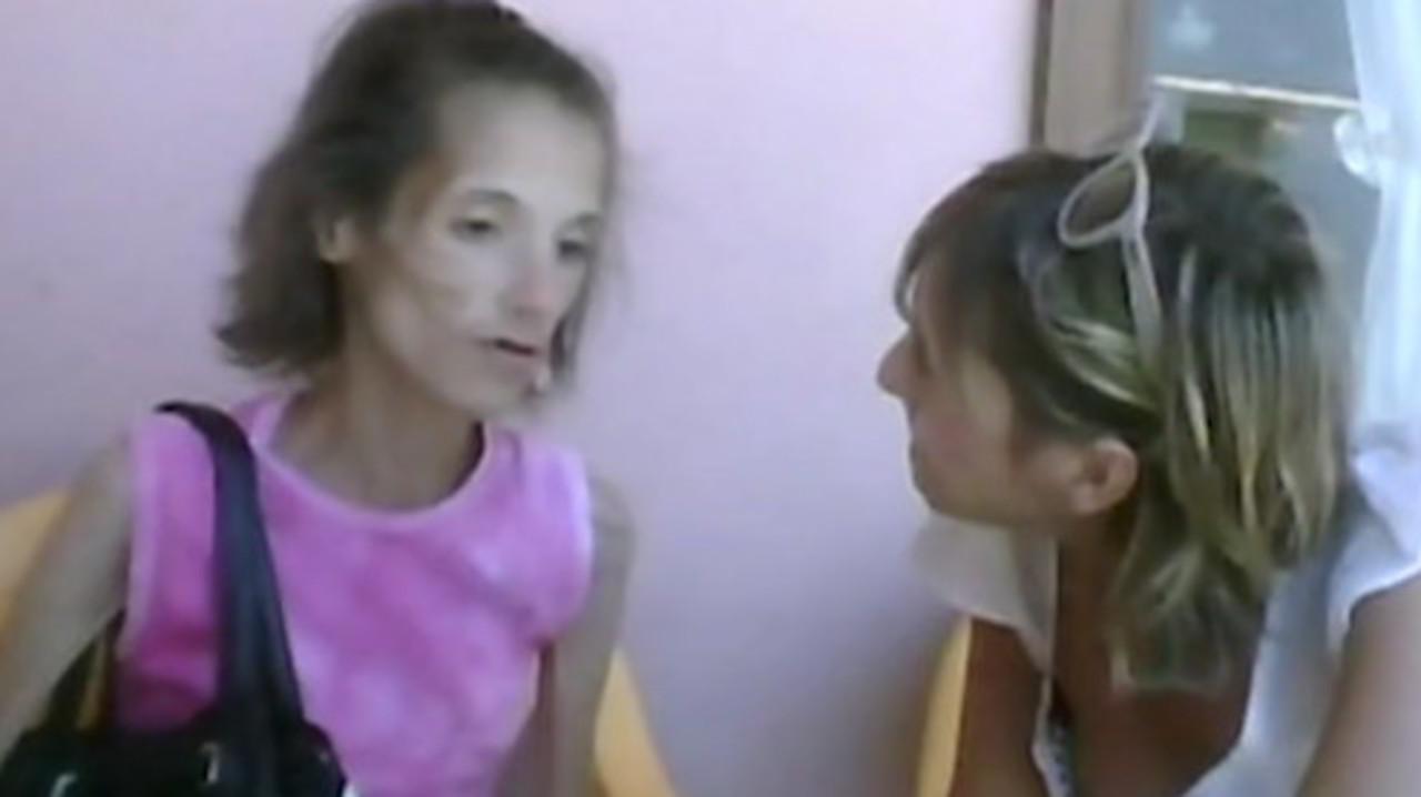 """Anoressia: """"Non solo la psiche, anche il metabolismo è determinante"""""""