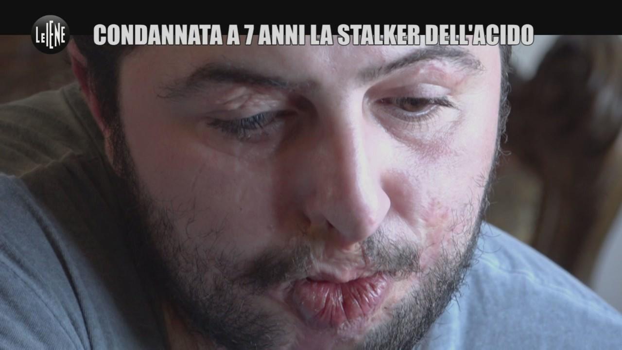 sfregio ex stalker acido