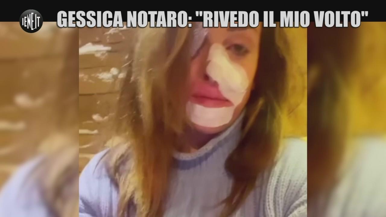 Gessica Notaro sfregio