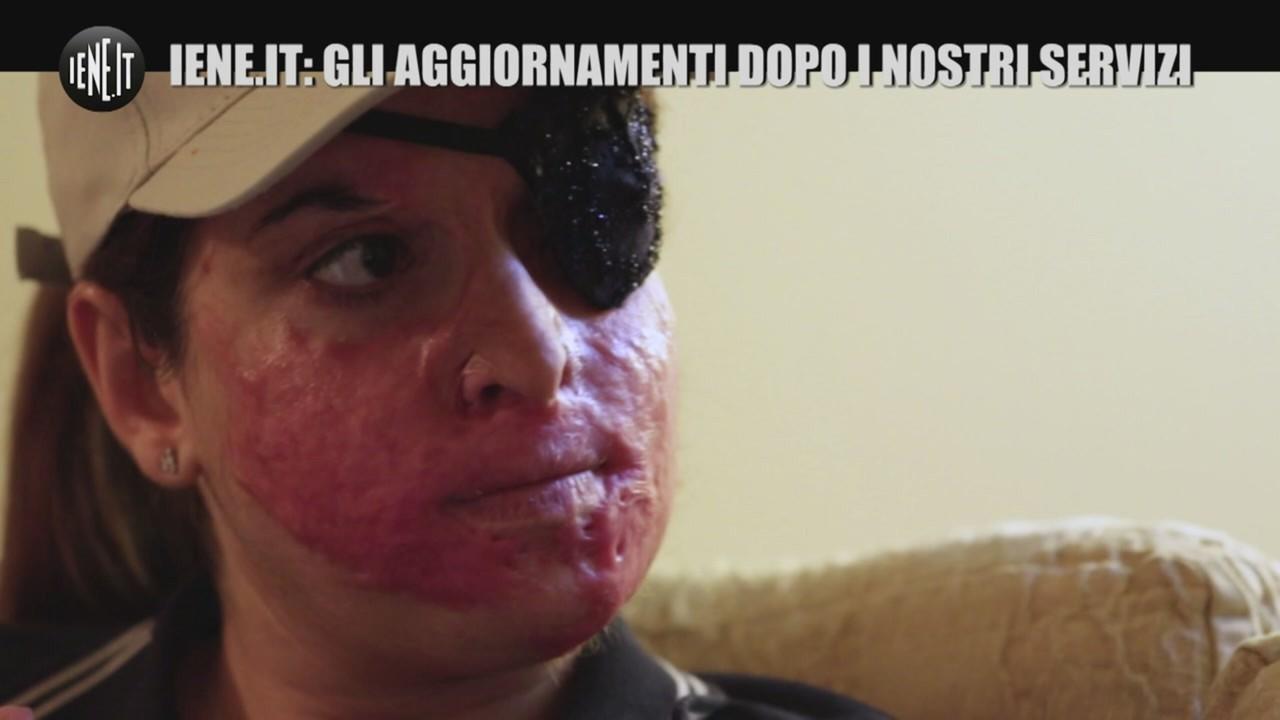 Gessica Notaro dopo le operazioni
