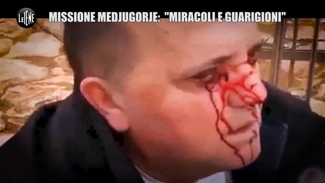 Missione Medjugorje miracoli guarigioni