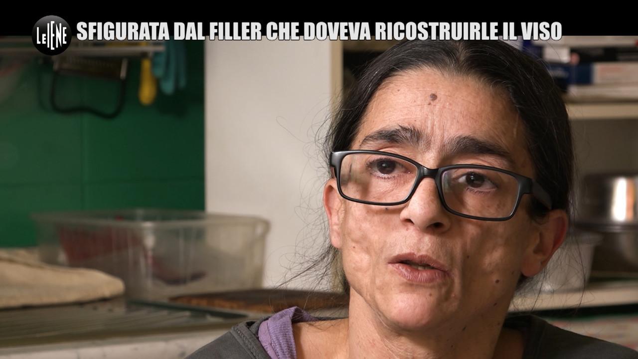 RUGGERI: Barbara, il suo volto rovinato e quel medico che non la risarcisce