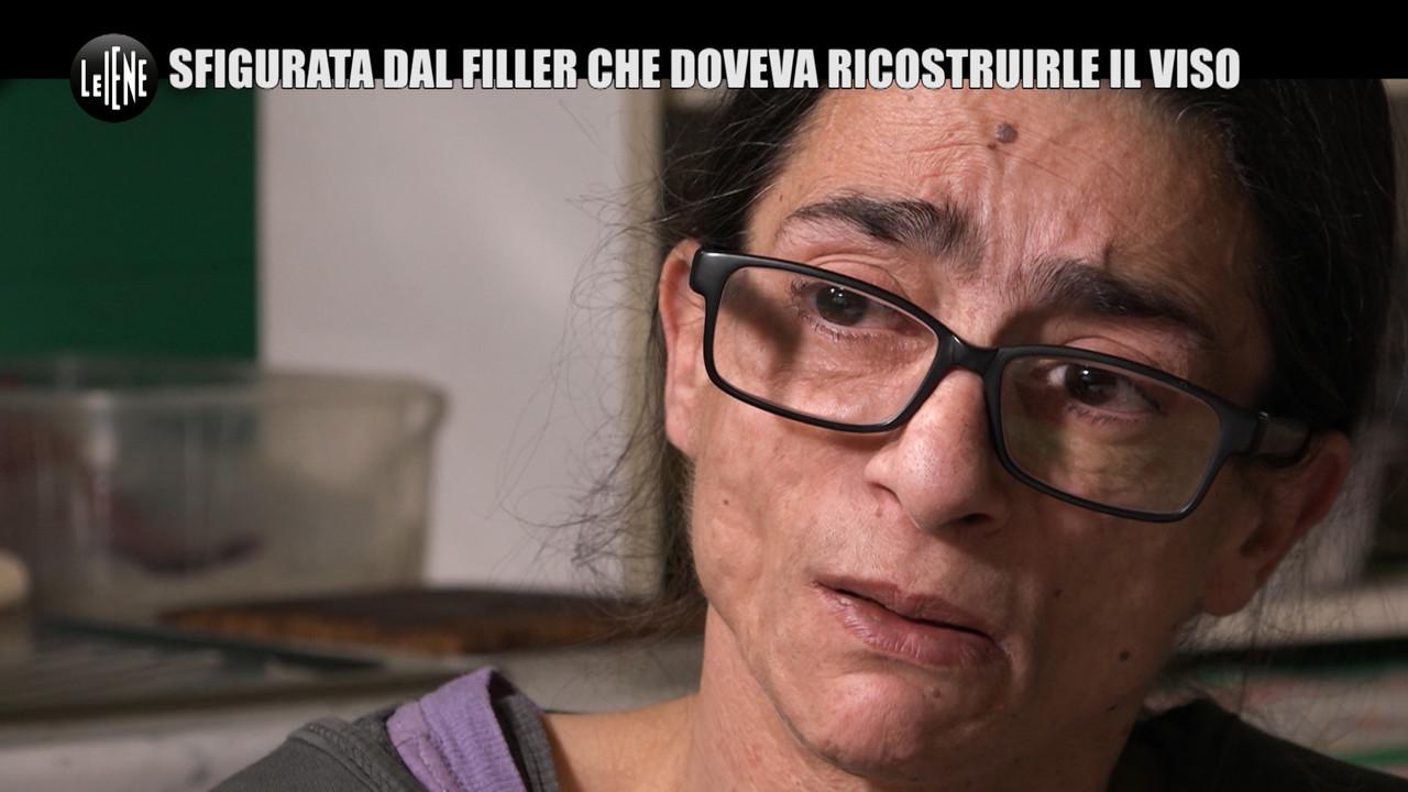 Barbara: dal volto rovinato al chirurgo senza risarcimento