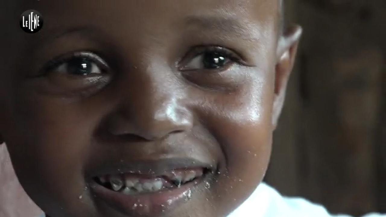 Disabili in Kenya: le gambe di Victor sono tornate diritte