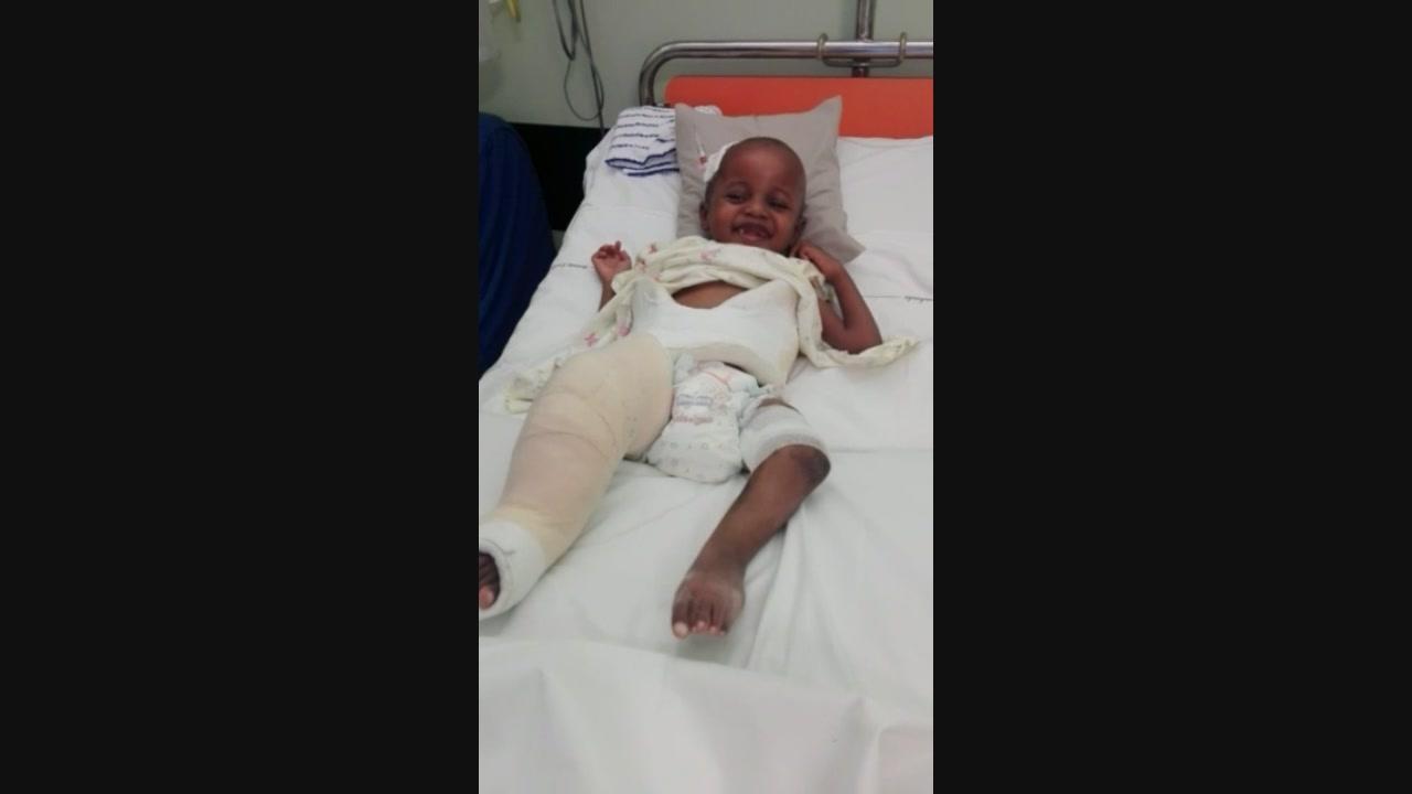 Disabili in Kenya, le gambe di Victor sono tornate diritte